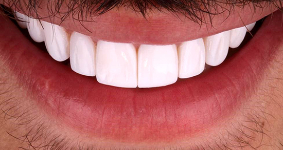 تعبیر خواب دندان ، افتادن و شکستن و کشیدن دندان لق و پوسیده و درآوردن نوزاد