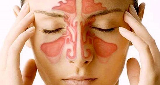 سینوزیت ، درمان و علائم نوع حاد و مزمن در بارداری و گوش درد با پیاز و عنبر نسارا