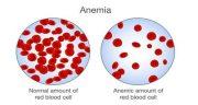 کم خونی ، علائم و درمان و انواع مینور و داسی شکل و شدید و فقر آهن چیست