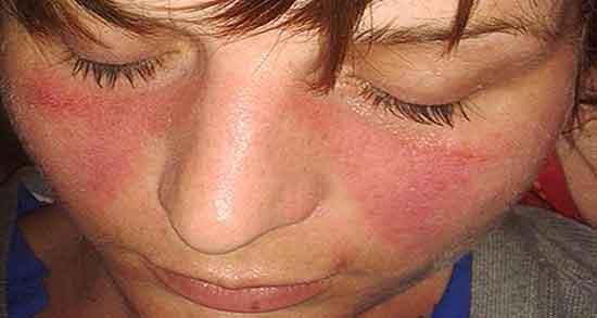 بیماری لوپوس چیست , بیماری لوپوس چیه , بیماری لوپوس و بارداری , بیماری لوپوس کشنده است