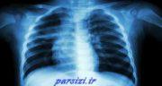 بیماری سل ، علائم و درمان سل حیوانی و ریوی و استخوانی چیست