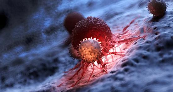 سرطان سر و گردن ، علائم و درمان سرطان سر و گردن چیست